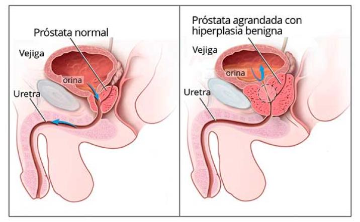 Enfermedades que trata la urología, problemas de prostata